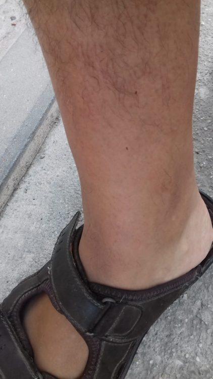 Imagen aportada por los vecinos de La Bajadilla con marcas de pulgas